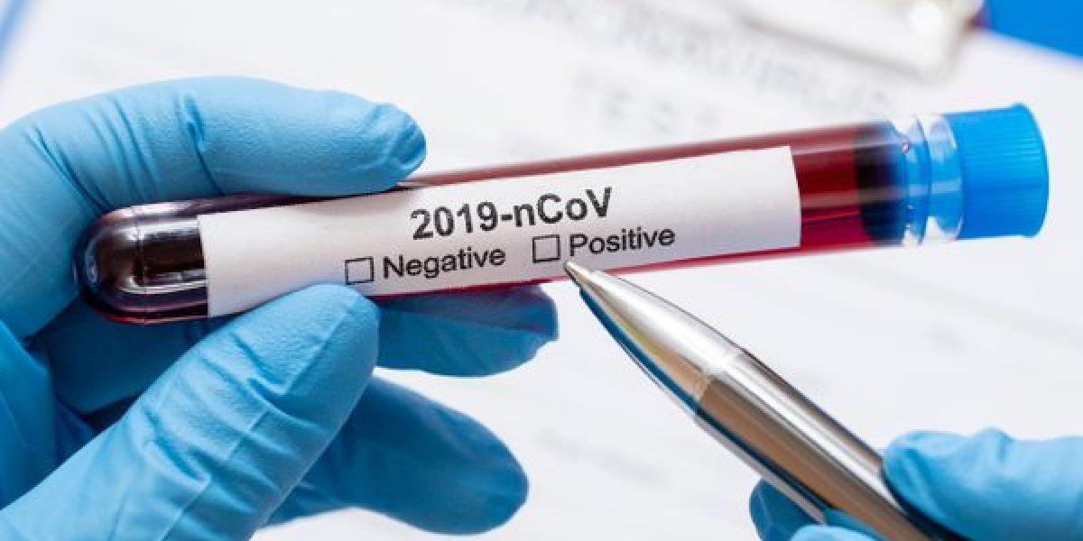 Farmácias têm até 48 horas para notificar à SES-RJ novos casos de Covid-19